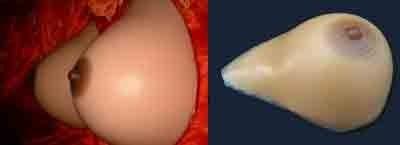 self-adhesive breasts