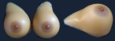 Asymmentrische Brüste